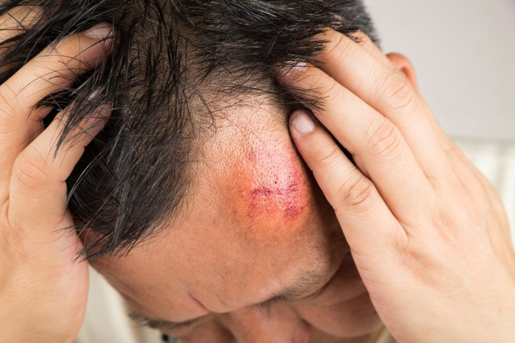 concussion from a car accident